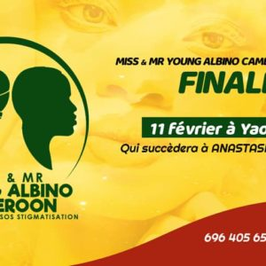Finale Miss Mr Young Cameroon Albino 2020